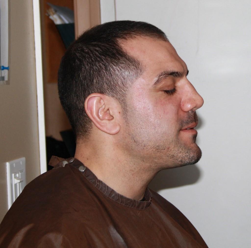 Giancarlo before